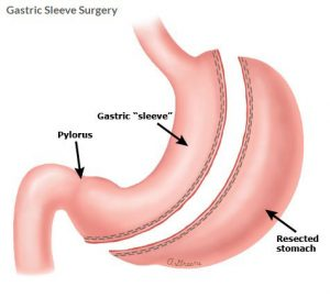 Gastric-Sleeve-Surgeon Miami
